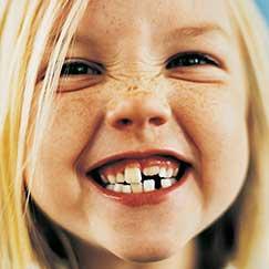 child in dentist chair